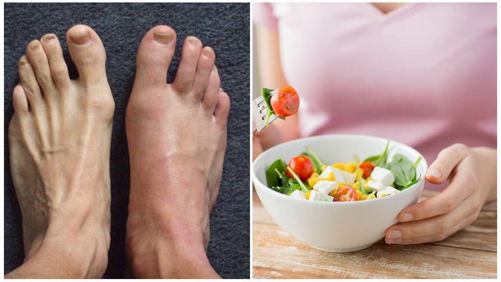 Подагра ног и соблюдение диеты