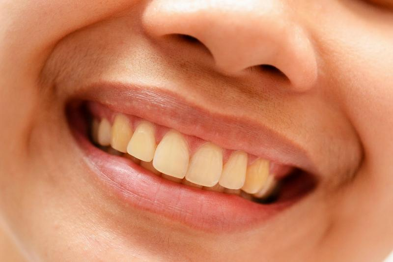 Опасность грейпфрута для зубной эмали