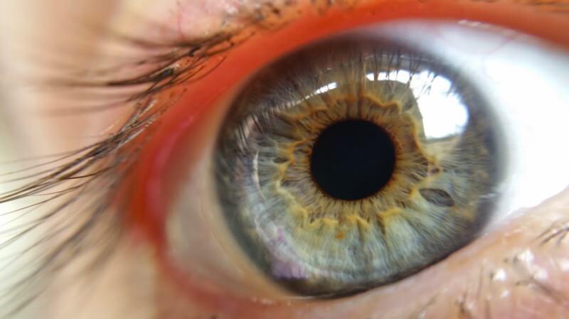 Одуванчик благотворно влияет на здоровье глаз
